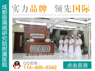 四川牛皮癣最好的医院