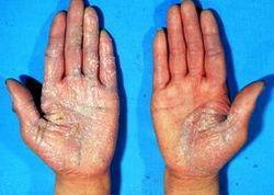 银屑病有哪些症状呢