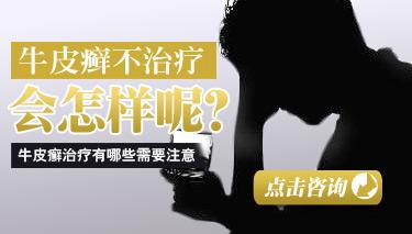 青少年怎么防止脓疱性牛皮癣恶化